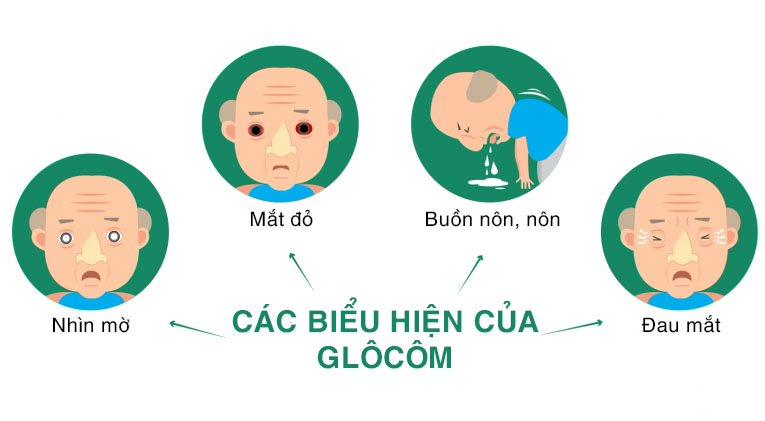 Biểu hiện của bệnh glôcôm thường là: Đau mắt, đỏ mắt, buồn nôn, nôn, nhìn mờ…